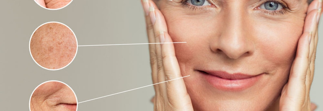 You Can Have Fewer Wrinkles: Ask Your Dermatologist About Skin Therapies