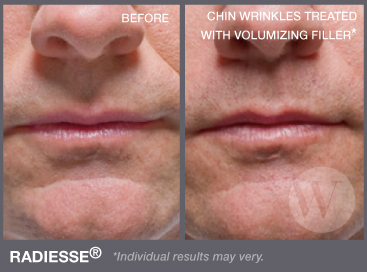 Man's face before and after Radiesse