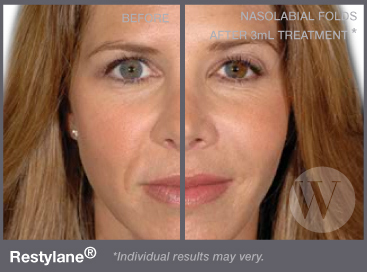 Woman's face before and after Restylane
