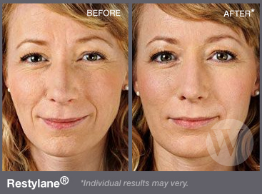Close up of a woman's face before and after applying Restylane®