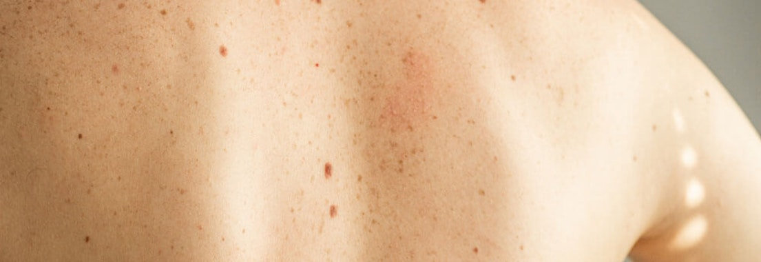 Moles vs Skin Cancer: Answering Your Pressing Questions