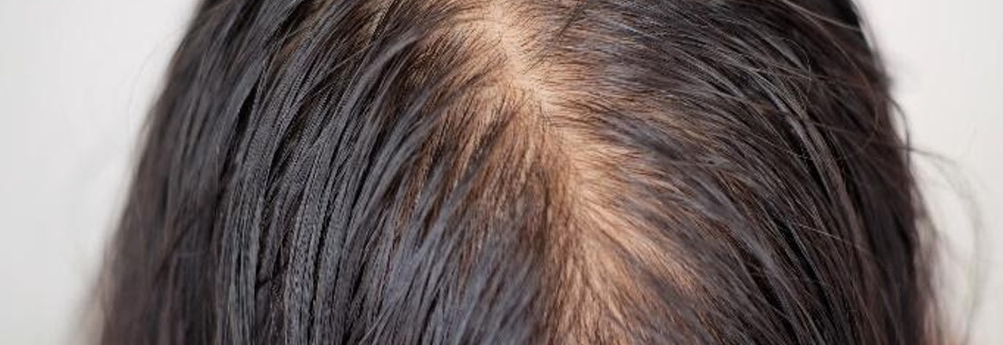 Woman with hair loss on her scalp How Old Should I Be Before I Start Noticing Hair Loss?