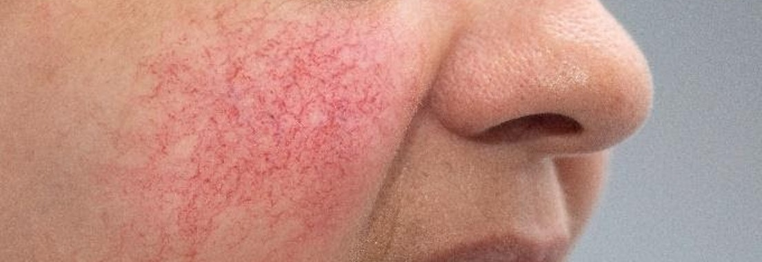How to Protect My Skin with Rosacea in the Summer