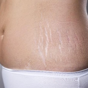 Tips for Getting Rid of Stretch Marks