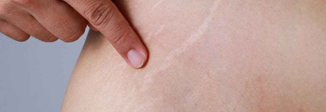 Person with stretch marks Get Help with Your Stretch Marks Before Swimsuit Season