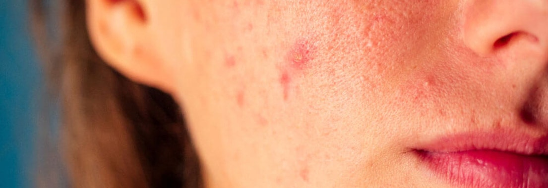 You Can Treat Acne Without Scarring: Here's How