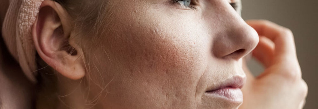 Acne on a woman's face Embarrassed by Adult Acne? Your Dermatologist Can Help