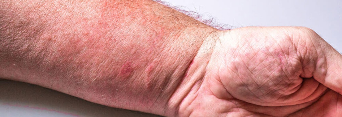 Man's arm with poison ivy on it Stop the Itch! Find Relief From Poison Oak and Poison Ivy
