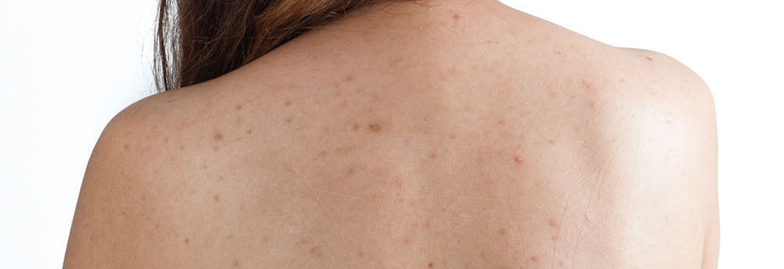 Say Goodbye to Your Body Acne