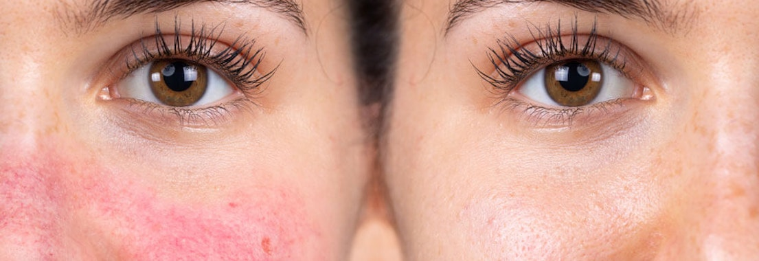 Rash and rosacea on someone's face Rashes and Rosacea: What Makes These Skin Conditions Different?