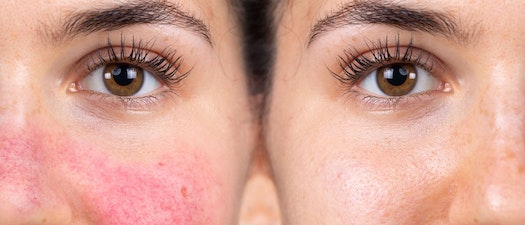 Rosacea vs. Redness: How to Tell the Difference