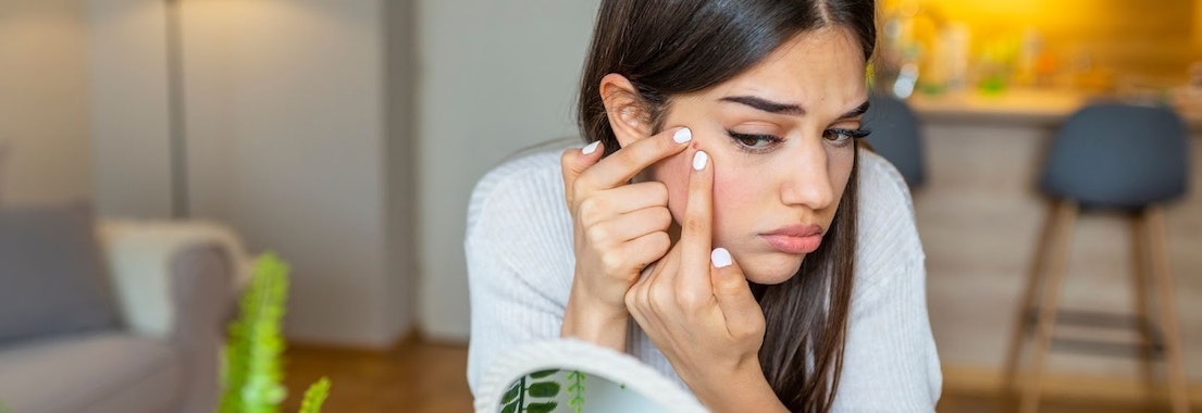 Woman tending to facial acne Best Winter Skin Care for Acne Prone Dry Skin