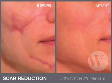 Before and after scar reduction