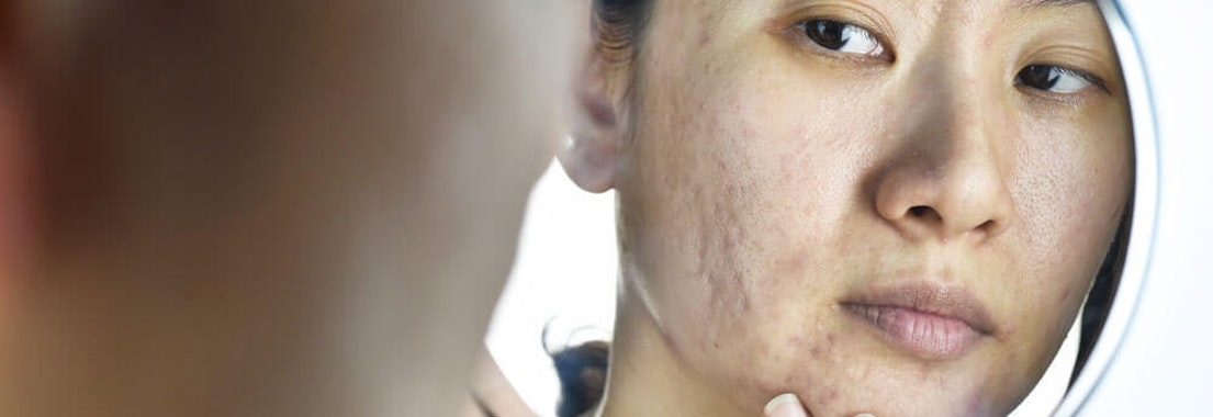 Acne Scarring: Finding the Best Remedies