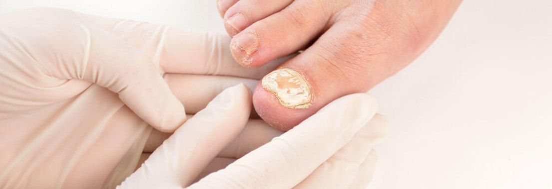 Common Fungal Infections and How to Treat Them