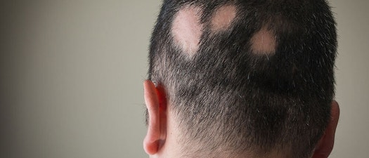 Alopecia: What to Do About Excessive Hair Loss