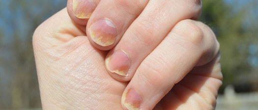 Understanding Nail Health and Common Nail Problems