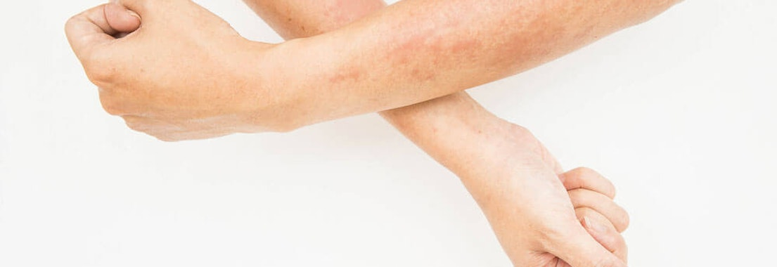 Hives: The Common and Surprising Causes