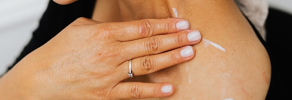 Woman applying treatment to a rash What to Do if You Get a Winter Rash