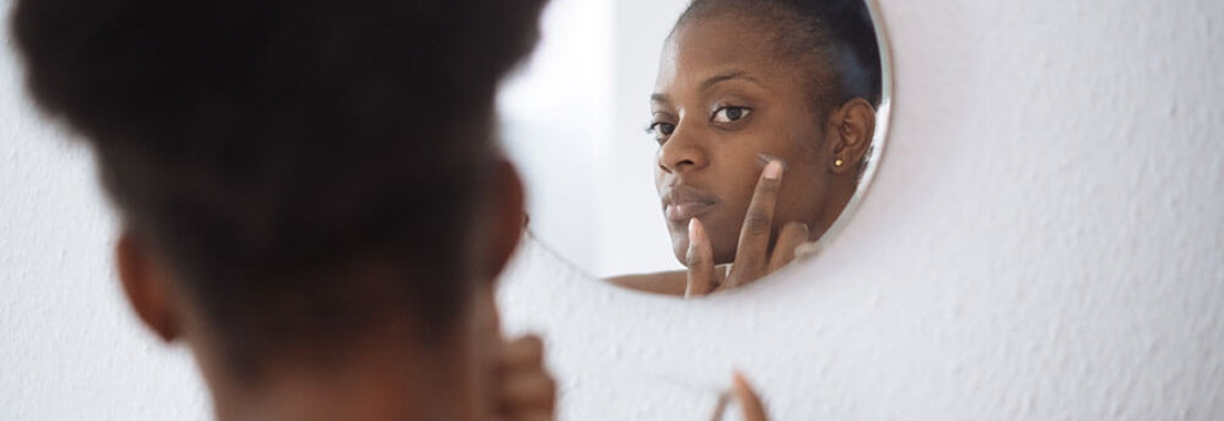 Pacific Dermatology Specialists Melasma treatment Say Goodbye to Melasma and Dark Spots With Cosmetic Dermatology Treatments