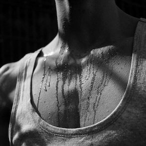 The Dermatology Group Partners excessive sweating 7 Causes of Excessive Sweating