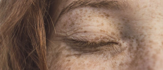 The Dermatology Group freckle skin treatment Can Freckles Be Fixed?