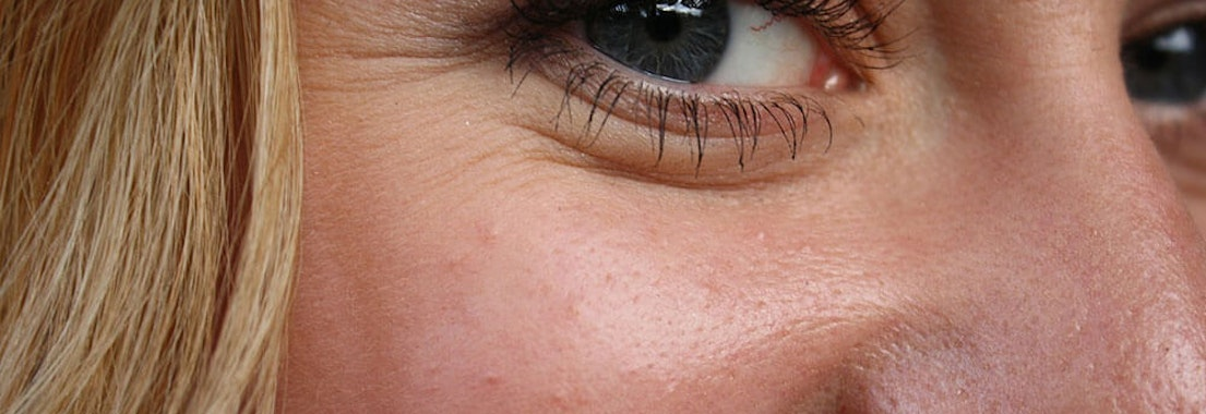 Woman with Crow's Feet under her eye What Are Crow's Feet and How to Fix Them