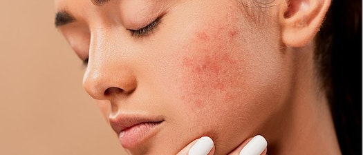 Woman with hive on her face Can Hives Be a Sign of Something Serious?
