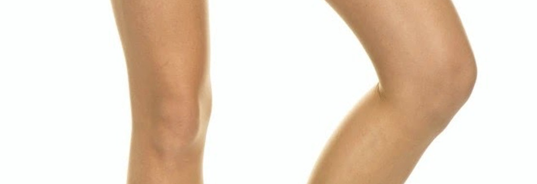 What You Can Do About Leg Veins
