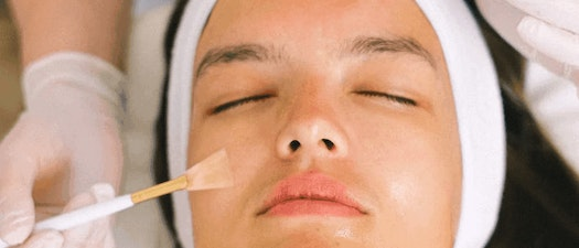Don't like needles? Don't worry! Treat your aging skin with a chemical peel!