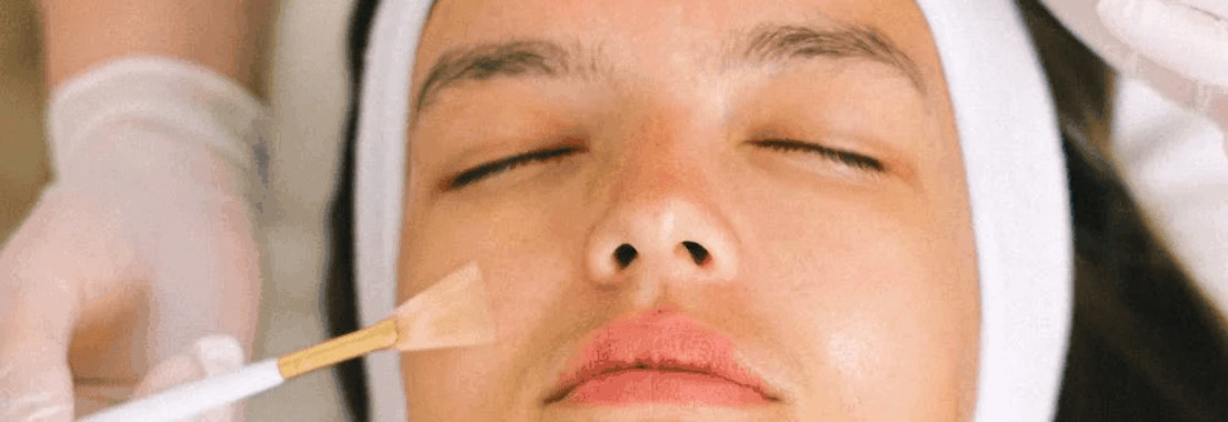 Woman having chemical peel treatment Don't like needles? Don't worry! Treat your aging skin with a chemical peel!