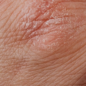 Person with abnormality on their skin How to Reduce Your Risk of Actinic Keratosis and Skin Cancer