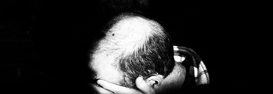 Signs of Alopecia: How to Spot Premature Hair Loss