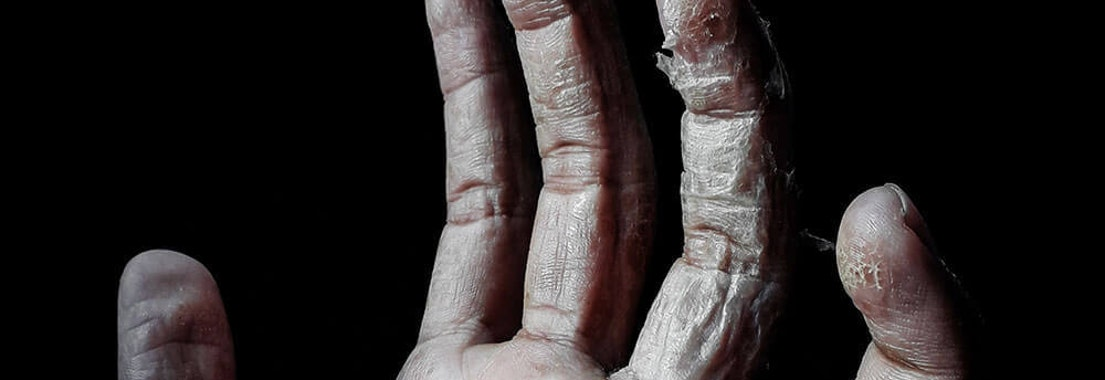 Hand with peeling skin from being dehydrated Do You Have Dehydrated Skin?