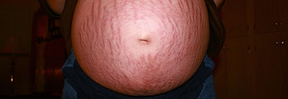 The Dermatology Group Partners laser stretch mark removal treatment Stretch Marks: How Lasers Can Help