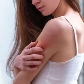 Treating Rashes: When to See a Doctor