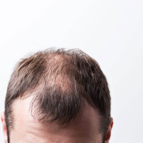 Treating Alopecia: Chronic Hair Loss Can Be Treated