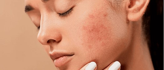 Worst Foods for Acne