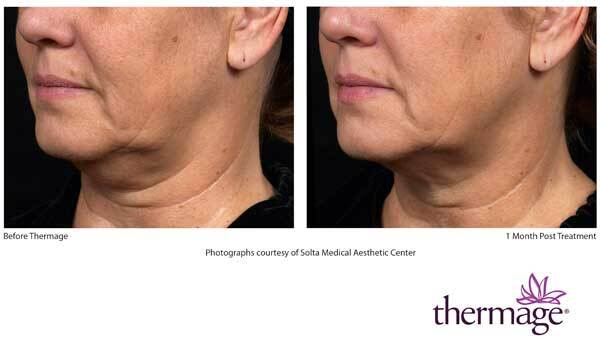 Close up of woman's face before and after Thermage
