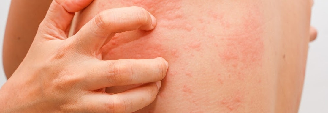 Person scratching at hives on their skin How to Treat and Prevent Hives