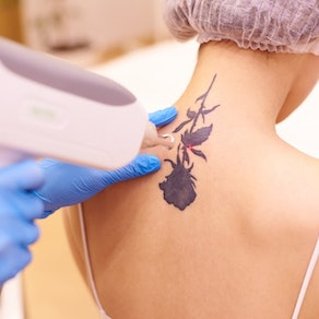 Woman having laser tattoo removal on her neck Laser Therapy: From Stretch Marks to Tattoo Removal