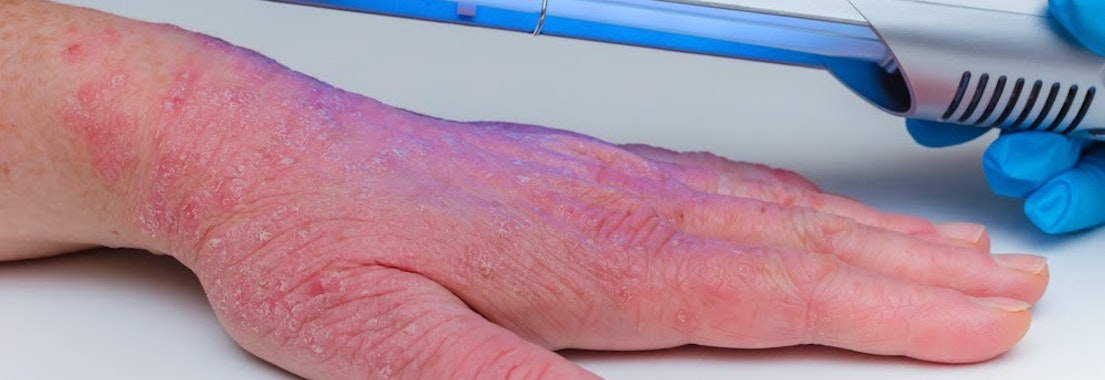 Phototherapy on a person's hand How Phototherapy Can Help Your Skin
