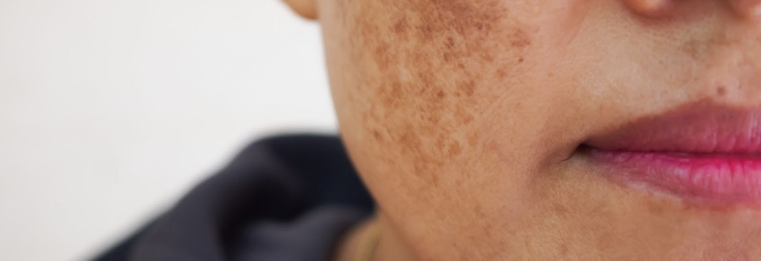 Woman with pigmentation spots on her cheek Unwanted Pigmentation? Enjoy Clear Skin with Laser Treatments