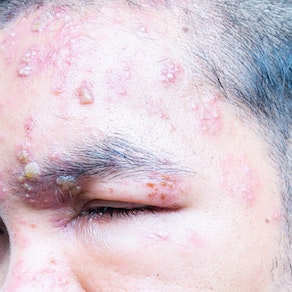 Man with shingles on his face What Shingles Can Do to Mature Generations