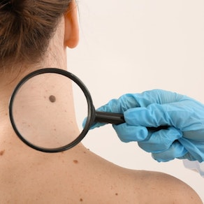 Dermatologist looking at woman's mole What Areas of the Body Are Most Prone to Skin Cancer?