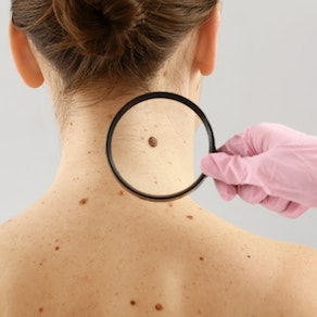 Doctor looking at a mole on a woman's neck Arm Yourself with Knowledge. Here Are the Top 4 Things to Know About Skin Cancer