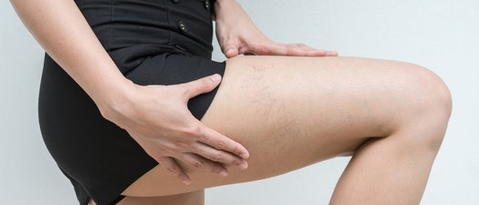 Woman with spider veins on her thigh How to Treat Spider Veins Before Swimsuit Season