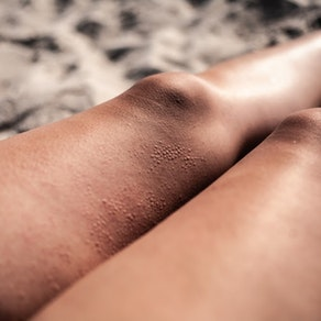 Woman with rash on her legs Springtime and Rashes: How to Enjoy the Sun Without the Rash