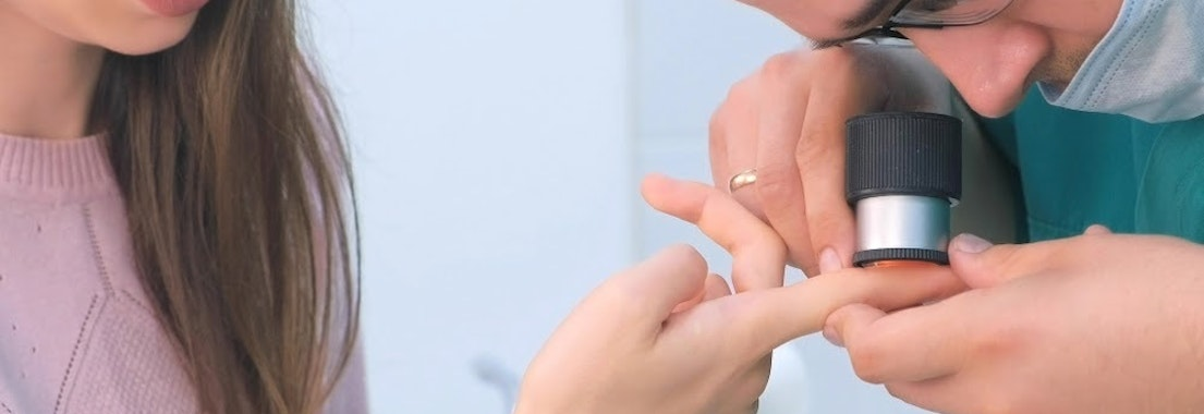 Doctor looking at someone's wart How to Detect a Wart and What to Do About Them