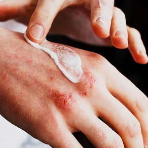 Person applying cream to eczema Keep Your Dermatitis/Eczema Under Control This Winter